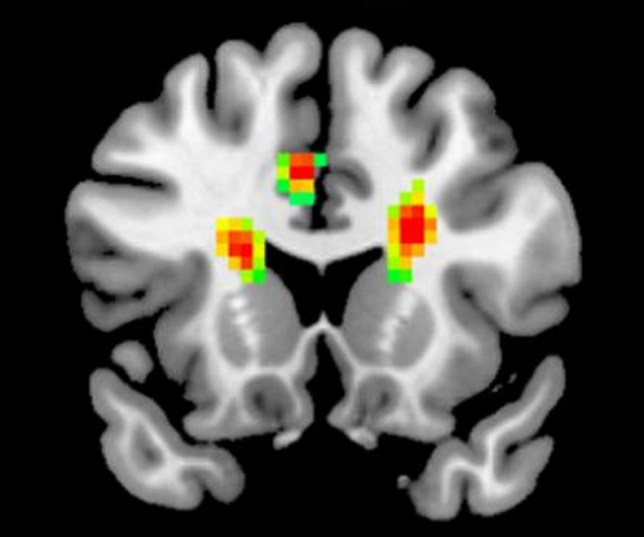 This is what your brain looks like when you're in love, according to scientists (Pic: Frontiers in Human Neuroscience)