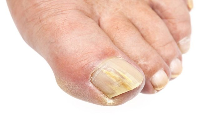 Eugh gross! Just why do we find our toenails so disgusting