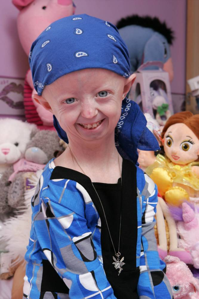 Television Programme: Extraordinary People: Hope for Hayley.  Picture shows Hayley Okines, who suffers from Progeria.  Licensed by CHANNEL 5 BROADCASTING. Five Stills: 0207 550 5509.  Free for editorial press and listings use in connection with the current broadcast of Channel 5 programmes only.  This Image may only be reproduced with the prior written consent of Channel 5.  Not for any form of advertising, internet use or in connection with the sale of any product.