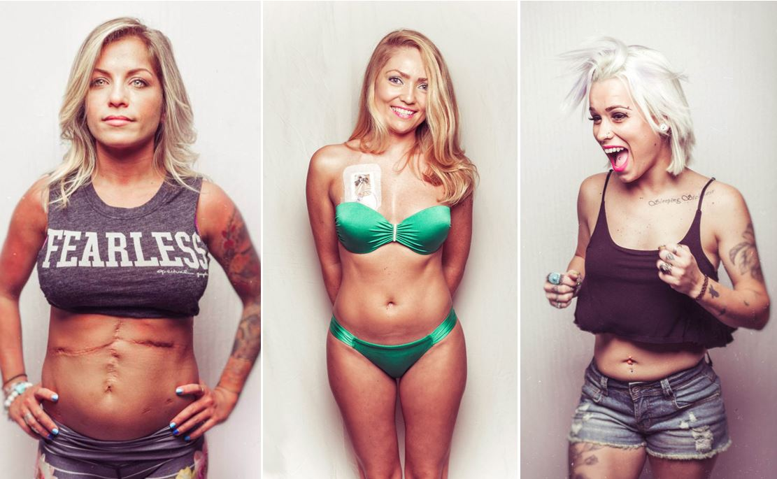 Inspirational photo series celebrates strong, beautiful women living with cystic fibrosis
