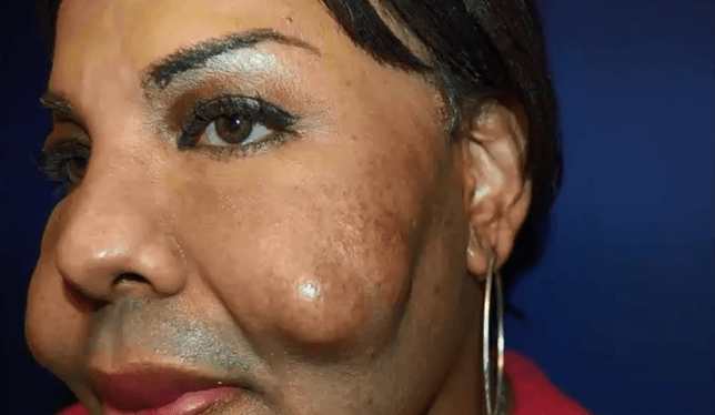 Botched: Transgender woman's face EXPLODED after having