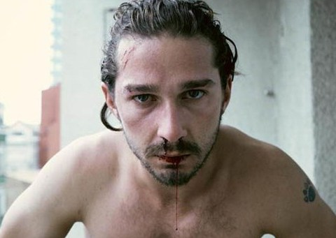 Shia LaBeouf taken to hospital after suffering head injury while filming new project American Honey
