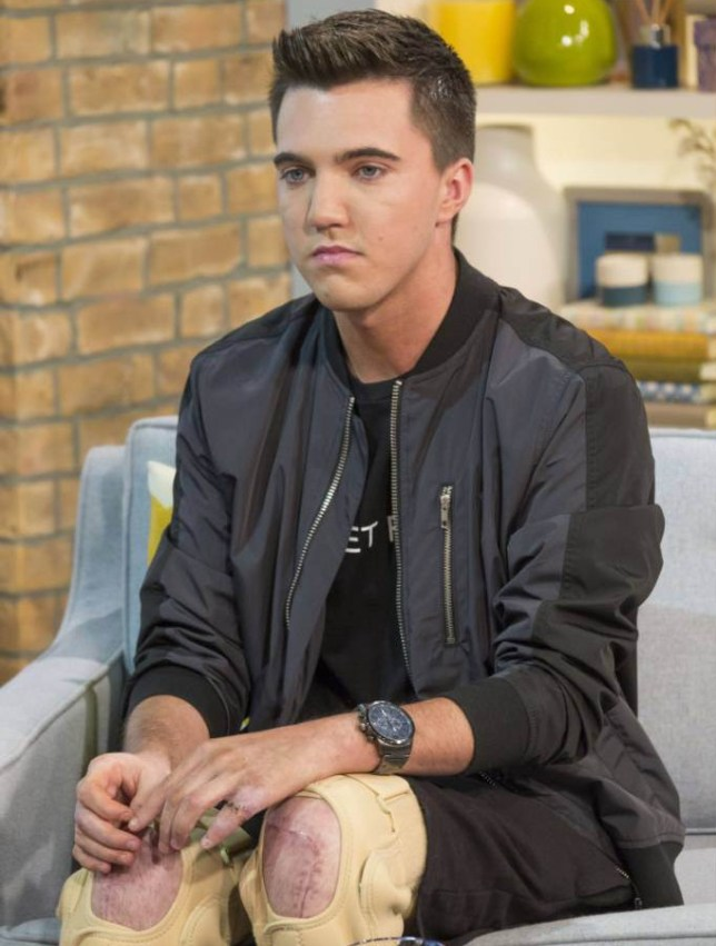 EDITORIAL USE ONLY. NO MERCHANDISING Mandatory Credit: Photo by S Meddle/ITV/REX Shutterstock (4898786bo) Joe Pugh 'This Morning' TV Programme, London, Britain. - 08 Jul 2015 INJURED AT ALTON TOWERS - EXCLUSIVE FIRST TV INTERVIEW: It was supposed to be a date filled with thrills and laughter, but for Joe Pugh and his girlfriend Leah, a trip to Alton Towers on the 2nd June turned into a nightmare. The pair were in the front row of The Smiler roller coaster when it crashed into an empty carriage. Joe was left with both knees smashed and his hands severely injured while Leah's injuries were so severe her left leg had to be amputated. Leah is still recovering in hospital while Joe is slowing trying to rebuild his life and he joins us today for his first television interview.