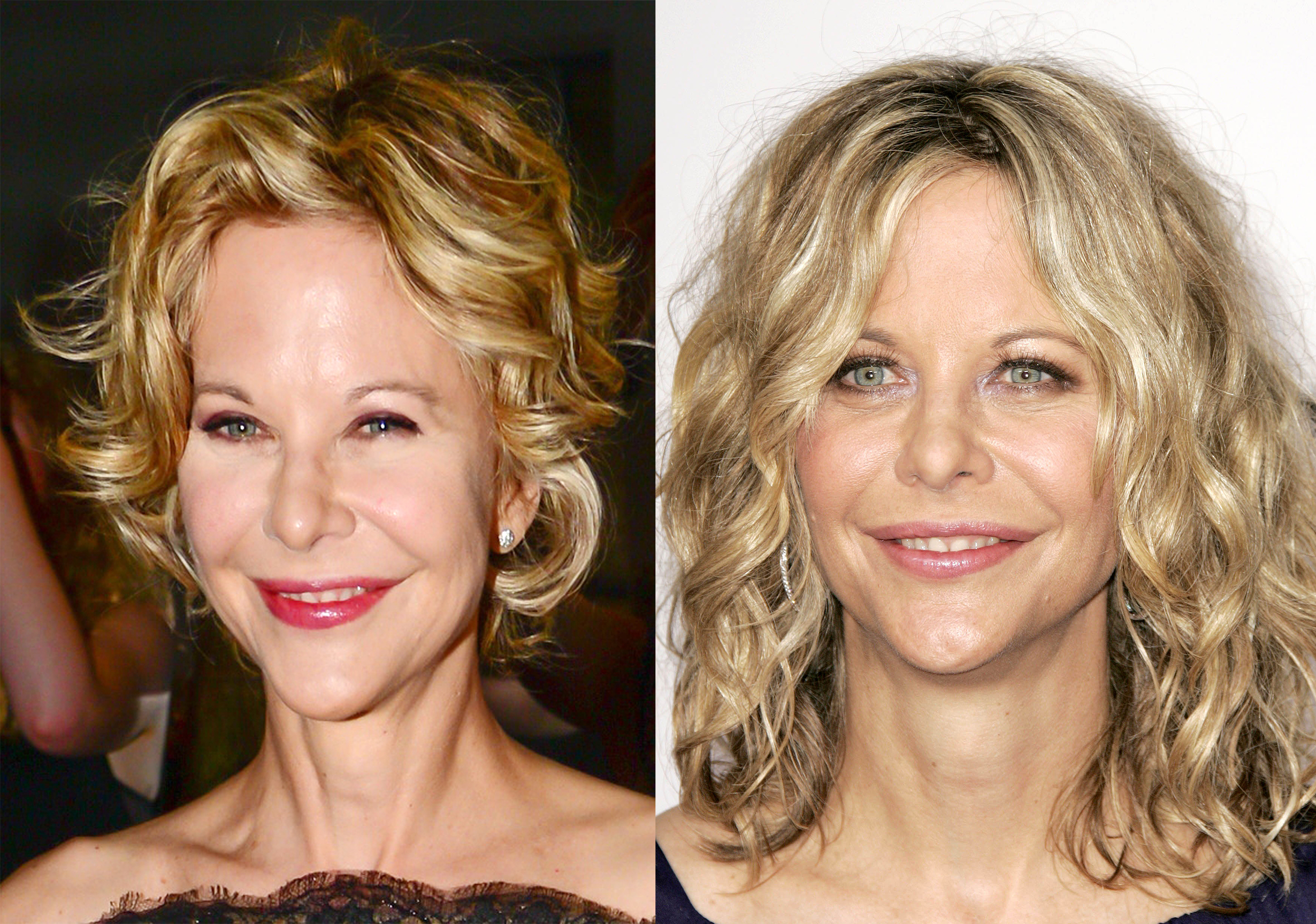 Meg Ryan is looking a little different these days…