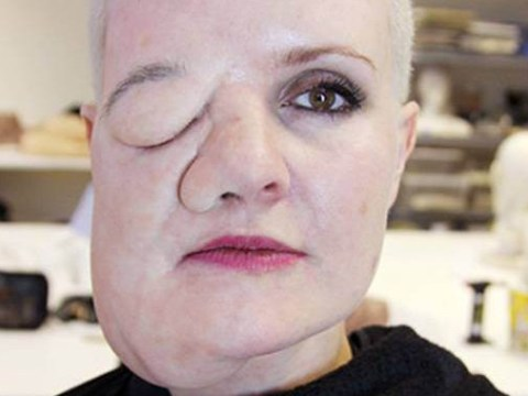 Artist with body dysmorphic disorder sees herself with a face tumour that doesn't exist