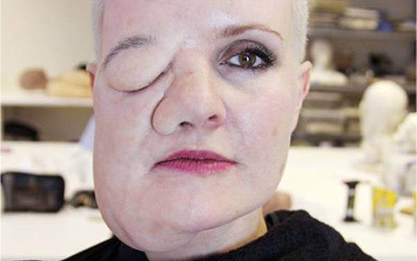 artist Leigh de Vries has body dysmorphia and sees herself with a facial tumour