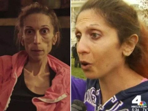 Anorexic woman, who made desperate plea for help at just three stone, shows how far she's come