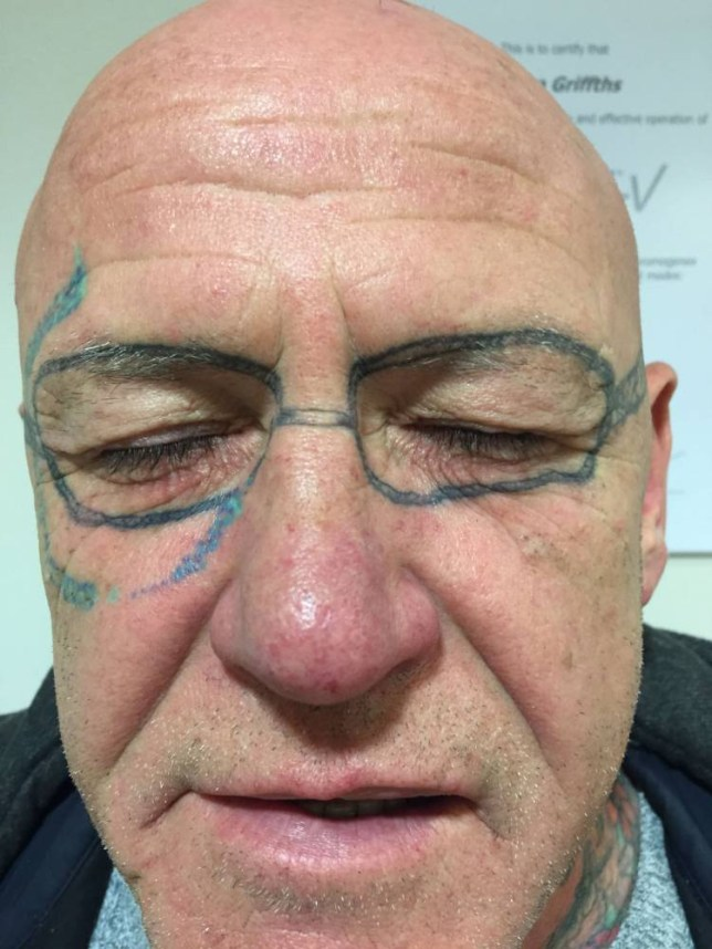 98e68ddb6a226 Drunken stag-do reveller wakes up with a pair of 'Ray-Bans' tattooed on his  face