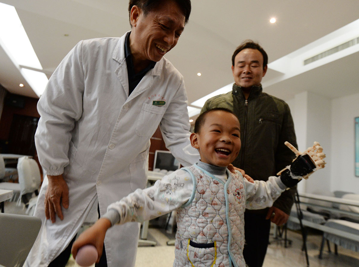 Chinese boy becomes first burn victim in country to receive 3D-printed hand, gets back on bike