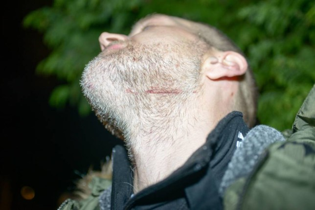 image of cut on the throat of David Pethers who was attacked along with another man by a knifeman slashed a man at the London tube station and allegedly shouted 'this is for Syria' before being Tasered by police in what has been described by Scotland Yard as a terrorism attack. London