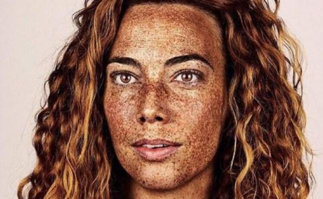 brock elbank freckles 15