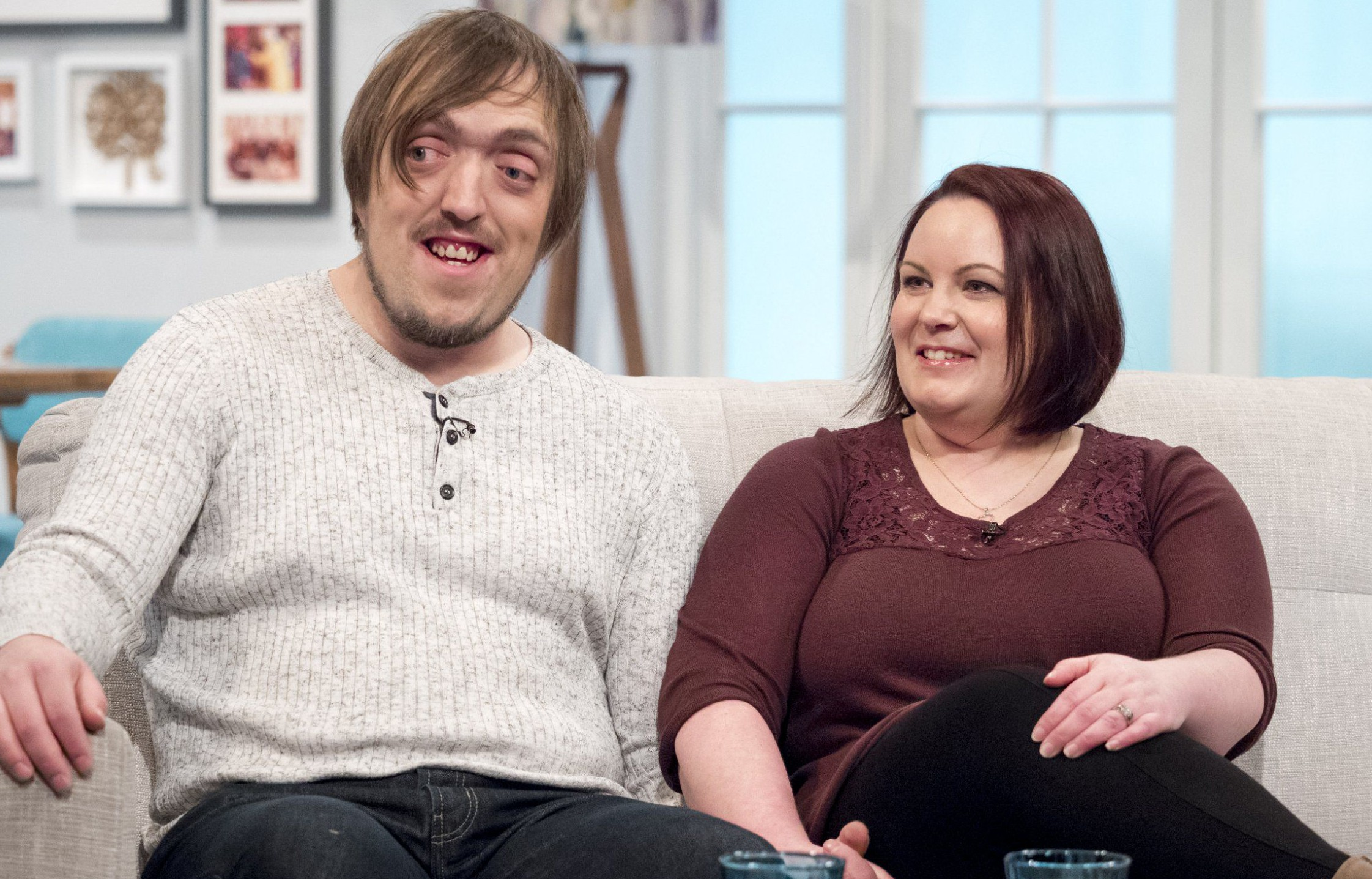 EDITORIAL USE ONLY. NO MERCHANDISING Mandatory Credit: Photo by Ken McKay/ITV/REX/Shutterstock (5579487af) Steve Carruthers and Vicky Carruthers 'Lorraine' TV show, London, Britain - 01 Feb 2016 Steve and Vicky Carruthers join Lorraine to talk about meeting t, Steve was born with a rare genetic condition called Crouzon synd, getting married last summer and their plans to start a family th, which affects the shape of the head and facial features.