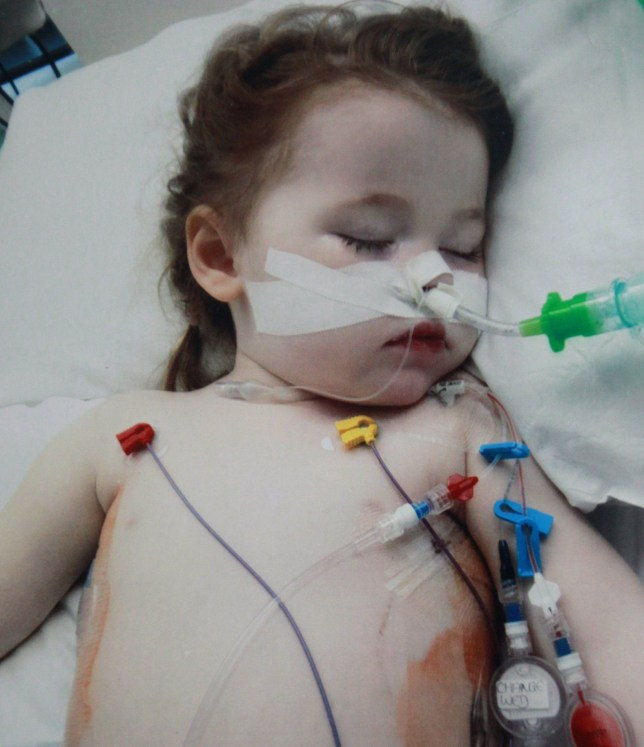 Two-year-old Sophie Skill, whose life was saved at Sheffield Children's Hospital last year after she swallowed a battery. See Ross Parry Copy RPYACID: A toddler is lucky to be alive after acid from a battery she swallowed burned through her lung. The injury was so severe that little Sophie Skill spent six days on life support following an emergency operation, and further months recovering in hospital, after swallowing a lithium battery the size of a 10p. Two-year-old Sophie was playing in her front room at home when mum Clare noticed she had become agitated and started to cry. She was crying excessively like I had never heard before, and she was holding the back of her neck, Clare said.