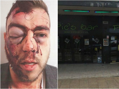 Brutal injuries of man who tried to break up a fight outside a club