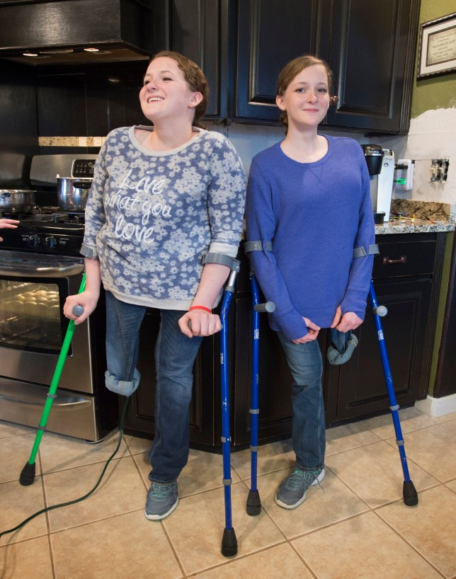 In this photo taken on Thursday, Dec. 24, 2015, Kathleen, left, and Charity Lincoln pose at their home in Harrisburg, Ore. Charity and Kathleen Lincoln spent their early years in the national spotlight. Conjoined at birth, intertwined through their abdomens and pelvises, the identical twins with curly, strawberry blonde locks hailed from Lacey and won Americaís hearts on Sept. 30 and Oct. 1, 2000, when at just 7 months old, they underwent a complicated, nearly 30-hour separation surgery at Childrenís Hospital in Seattle. (Tony Overman/The Olympian via AP)
