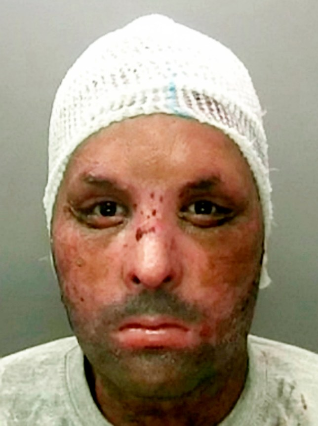 Muhammed Hammad with burns. A man who killed his wife after setting her on fire after pouring white spirit on her during a row while decorating, has been convicted of her murder today (Monday 21 March) and sentenced to a minimum of 25 years in jail. See NTI story NTIBURN. Birmingham Crown Court heard how Muhammed Hammad, aged 30, set fire to Nazia Aktar during an argument at their home in Fox Hollies Road in Acocks Green on April 25, 2015. He then poured some white spirit on to himself, before setting himself on fire in an effort to cover his tracks. Hammad initially claimed the fire had been caused accidently when a cigarette set alight some white spirit that had been spilt during the decorating. Nazia, aged 31, who worked as a full-time carer, suffered 60% burns to her face, ears, neck body, arm and leg following the fire. She died of her injuries in hospital on 12 June, 2015.