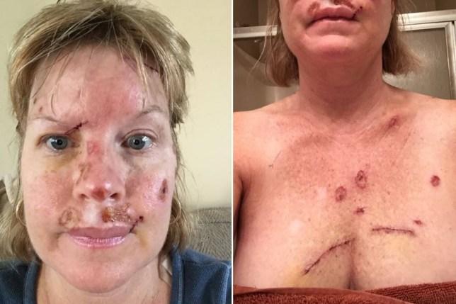 Judy Cloud S Facebook Skin Cancer Selfies Warn People Off Tanning Beds Metro News