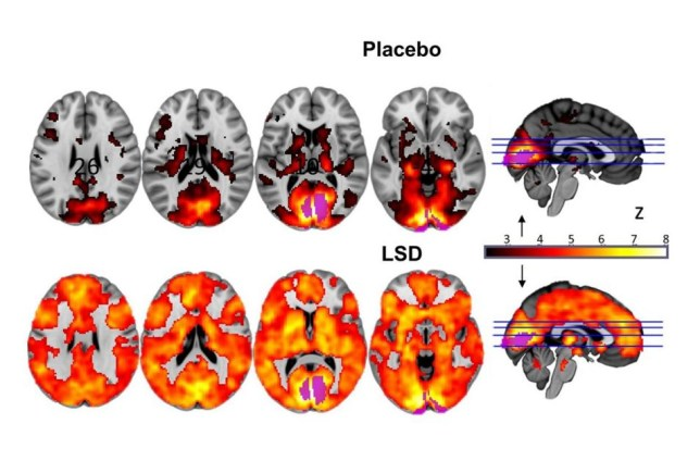 This is what LSD does to your brain
