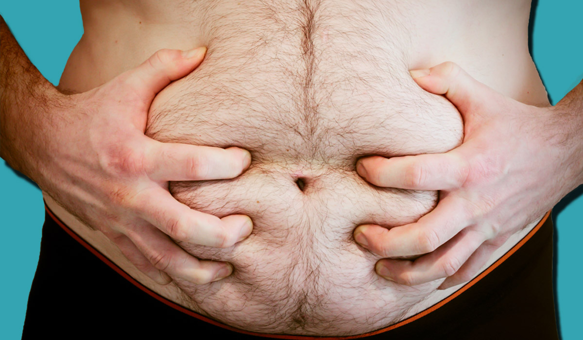 Should surgery be restricted to obese people unless they lose weight? Credit: Getty