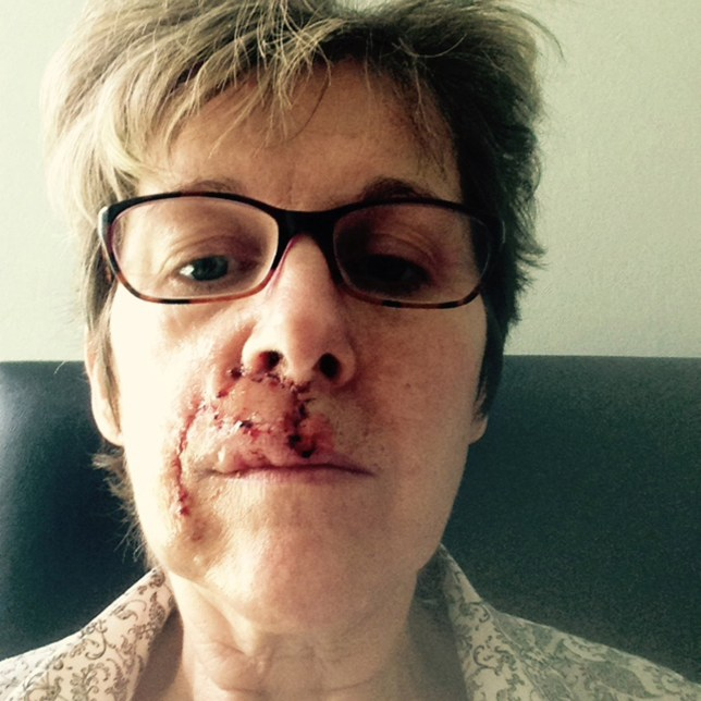 BPM MEDIA: Collect image. Pictured Carol Leech, 58 from Solihull, recovering from having a cancerous growth removed from her upper lip. A MUM who used olive oil and vinegar as sun protection as a young girl has told how doctors discovered her face freckle was cancer. Carol Leech, 58 and from Solihull, says she was left looking like a car crash victim after surgeons cut out the blemish ñ which was in fact a malignant melanoma. The PA has now issued a skin cancer warning after telling how she used to use a concoction of olive oil and vinegar before sunbathing when younger.