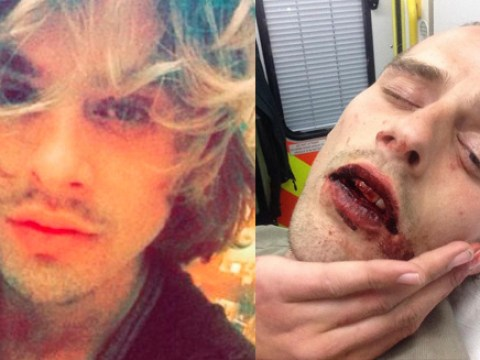 Man spent three days in hospital after homophobic attack in Brighton
