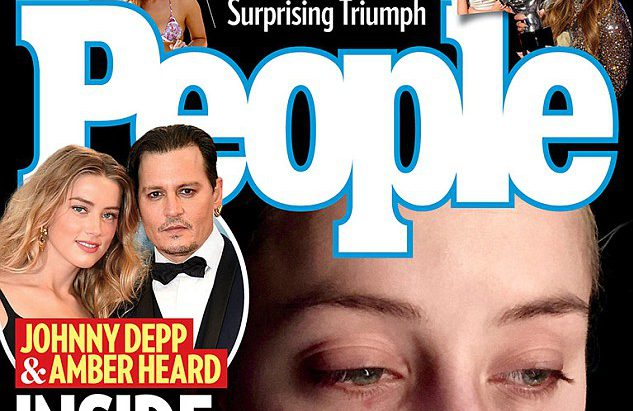 New photo shows Amber Heard with bruised eyes AND a bust lip she blames on Johnny Depp