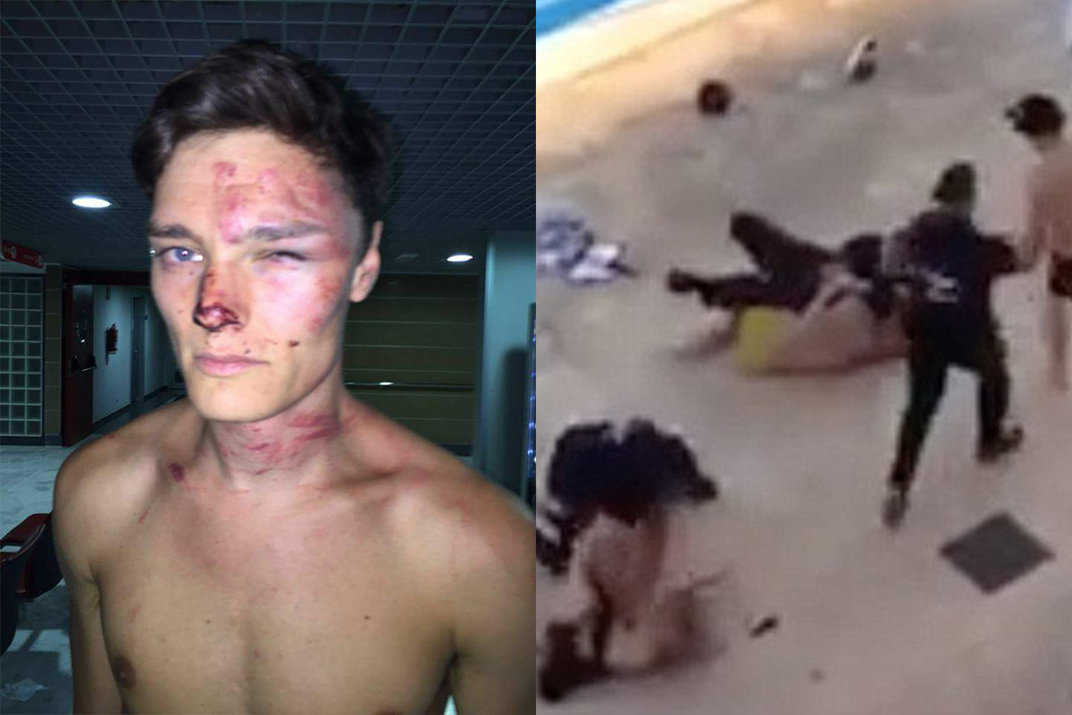 Bikini-wearing British tourist and boyfriend 'beaten up by bouncers for walking too slowly'