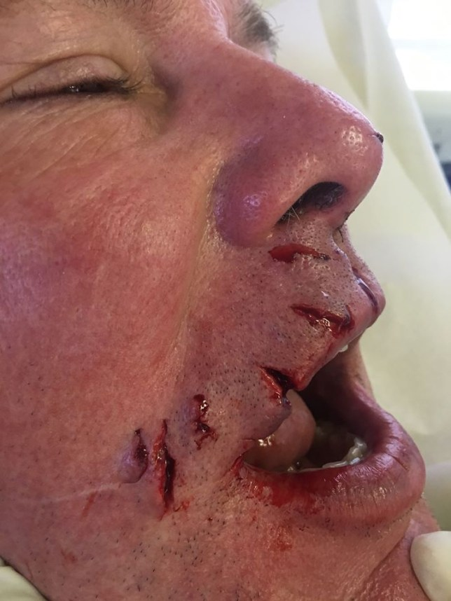 Dentist shows off his shark attack wounds