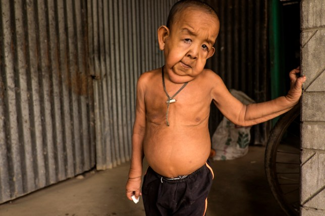 Boy, 4, looks like an old man and can't go to school 'because other children are scared of him'