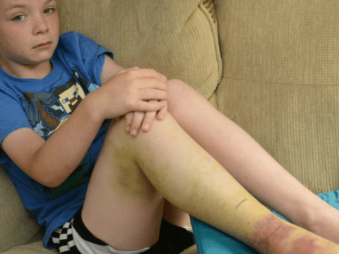 Boy left in agony after bitten by a snake on UK beach