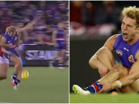 AFL and Western Bulldogs star Mitch Wallis suffers horrible self-inflicted leg break