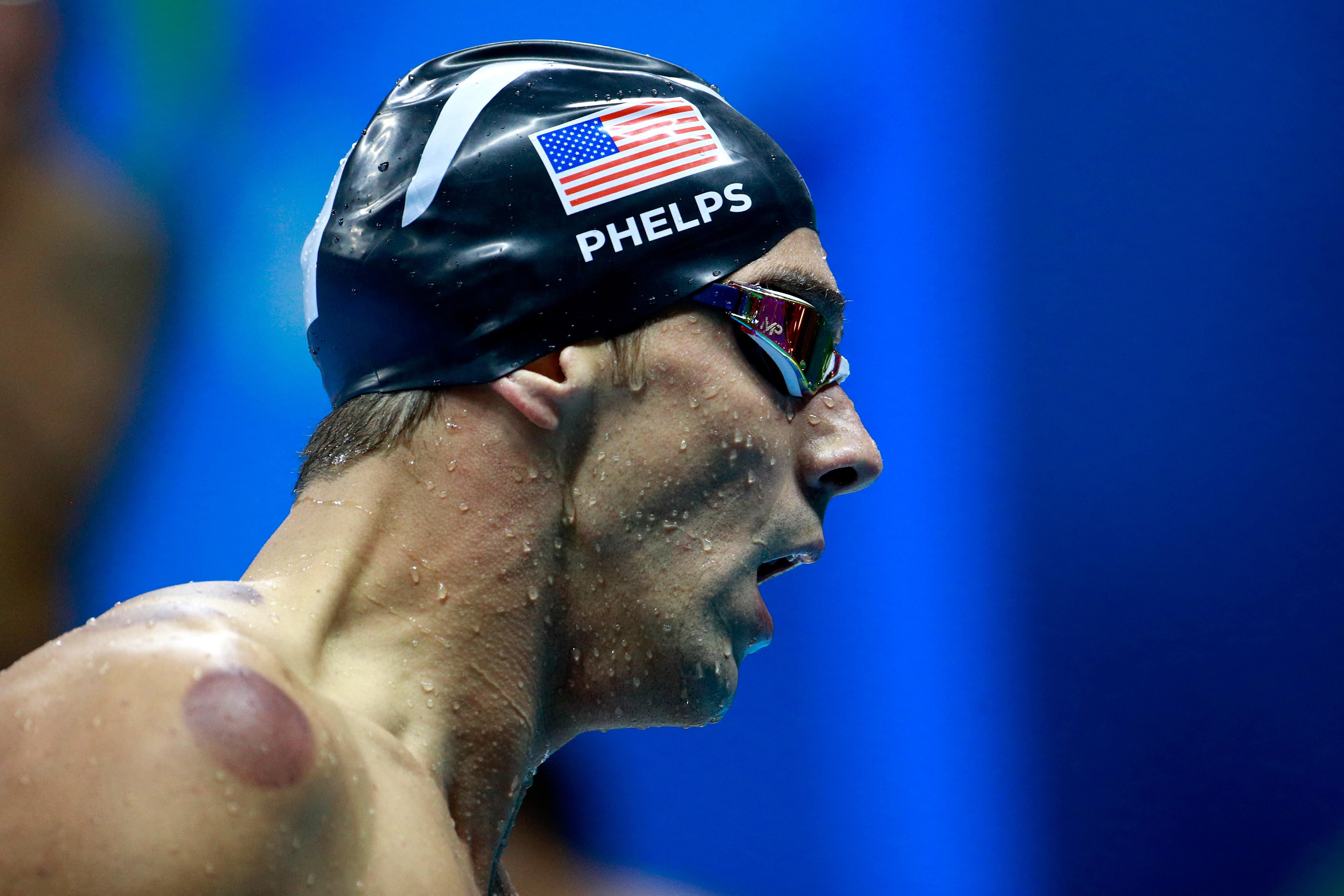 Weird circles on the back of Olympic champion Michael Phelps' back result of healing technique