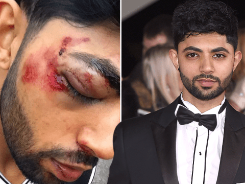 Coronation Street star Qasim Akhtar left bruised and bloodied after blacking out in freak accident