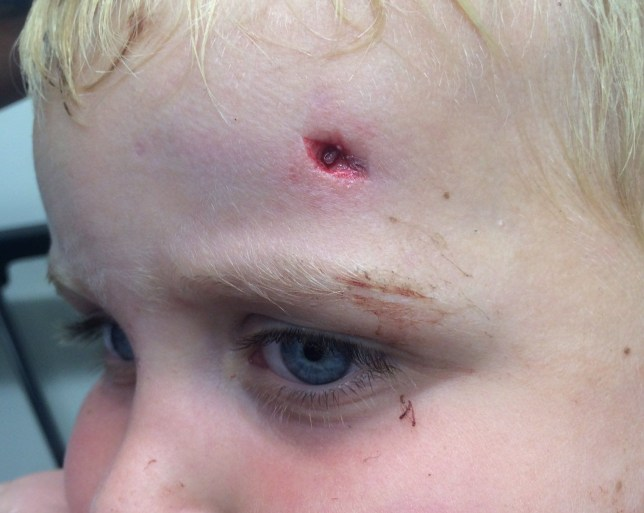"""Toddler Tommy Jenkins, 3, was nearly blinded when he impaled his head on a broken supermarket trolley rod. See National story NNTROLLEY; Tommy Jenkins suffered a deep cut to his head so deep his worried mum could see his skull after falling into the side of a broken Asda trolley as he walked in the car park. The three-year-old suffered a deep puncture wound to the side of his head, just an inch above his left eye. Mum Charlene Badd, 26, was with her son on the shopping trip, when he tripped over, falling onto a broken rod, which pierced his forehead. The accident left a cut so deep """"you could see his skull"""", according to dad Barry Jenkins, 29. Barry says his partner Charlene went into the Asda store in Ashford, Kent, and asked for help, but staff did not come to their aid."""