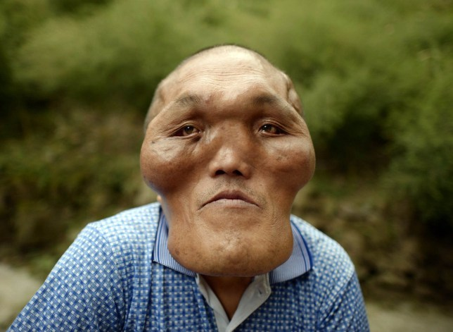 Mandatory Credit: Photo by Imaginechina/REX/Shutterstock (6034892b) Chinese villager Xia Yuanhai who has an alien-like deformed face Man has 'alien face', Changling town, Chongqing, China - 23 Sep 2016 A Chinese man was known to every one in his village because he has a big head and an alien-like deformed face. Xia Yuanhai, 53, lives in Laotu village in southwestern Chinese municipality of Chongqing. His apperance was normal when he was a teenager. But later hyperplasia was growing on his face and head, according to his 66-year-old brother Xia Yuanchang. As the growth of hyperplasia was very slow and his family was poor, Xia Yuanhai did not get enough attention from his parents and did not receive medical treatment. Many years later, the hyperplasia deformed Xia's face, crushing his teeth and nearly disabling his hearing. Now his brother hoped that some one can fund plastic surgeries to help his younger brother to get back his normal face.