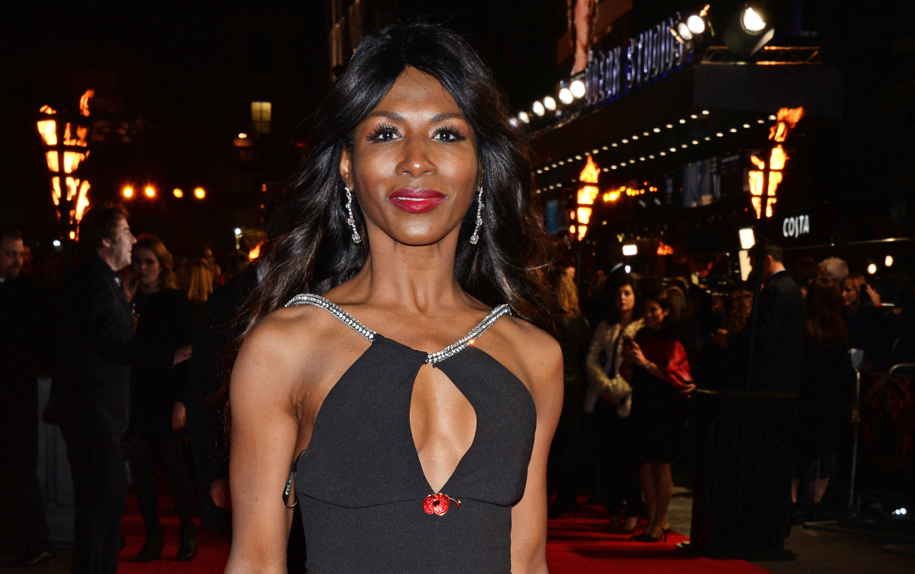 Sinitta will be undergoing a vaginoplasty (Picture: WireImage)