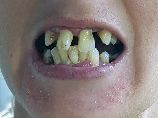 Mum got £17k worth of new teeth – for free thanks to Alpers