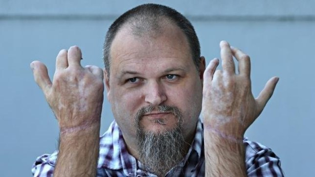 Man has his big toe sewn on to his hand after his thumb was crushed in roller Picture: Annette Dew / CourierMail SPOKE TO SNAPPER AND COURIER MAIL. LOW RISK TO USE IF WE PUT IN HER BYLINE AND ORIGIN OF PIC. ANNETTE DUE GAVE ME DIRECT CONTACT TO NEWS CORPS AND SAID THEY'RE FINE TO USE IF WE'RE PART OF THE GROUP ANYWAY. 'NEWS CORPS' WILL WANT A STANDARD RATE FEE AT THE MOST. AWAITING THEIR RESPONSE STILL.