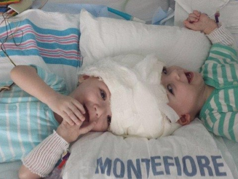 Twins joined at the head are successfully separated in 20-hour operation