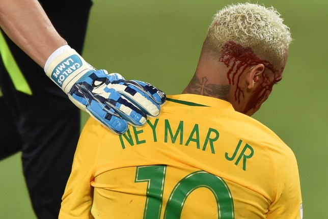 Brazil's Neymar bleeds after being injured in the face during the Russia 2018 World Cup football qualifier match against Bolivia in Natal, Brazil, on October 6, 2016. / AFP / Nelson ALMEIDA (Photo credit should read NELSON ALMEIDA/AFP/Getty Images)