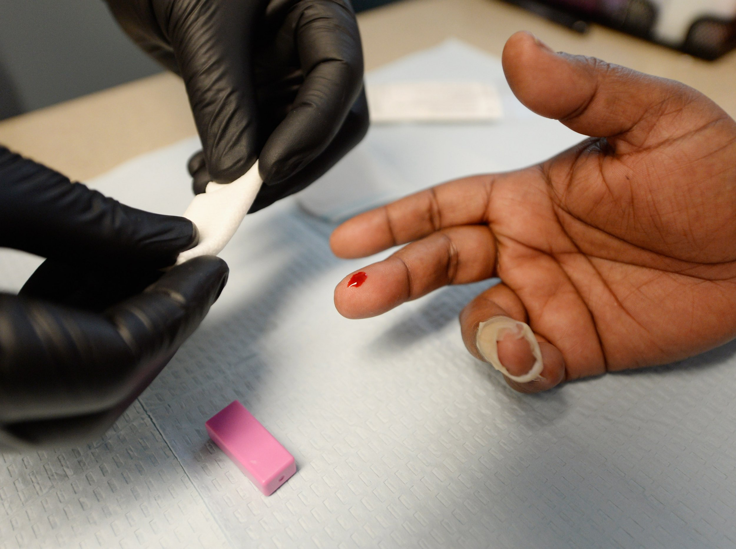 Whether you have gay sex or straight sex, you need to take an HIV test