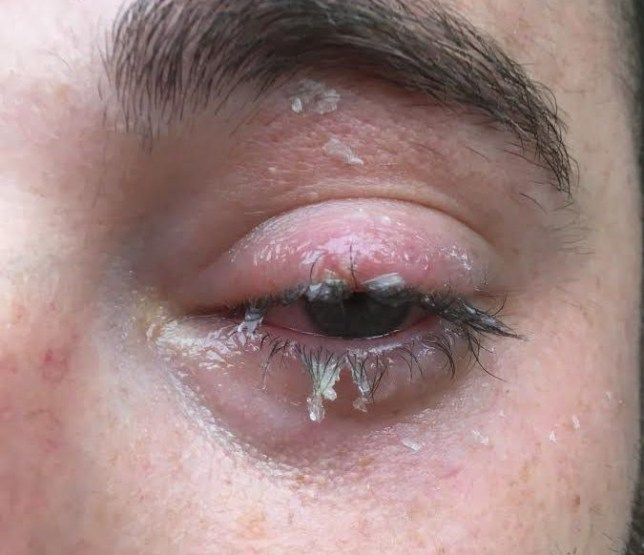 Dad-of-two Ben Wyatt from Kilmersdon, Somerset, fears he has suffered permanent eye damage after accidentally squirting superglue in his face from a split tube. See SWNS story SWGLUE; Self-employed tiler Ben Wyatt, 30, said the container of UHU adhesive apparently ruptured as he tried to open it. It shot into his eyeball and he instinctively squinted and the glue stuck his eyelashes together. Ben, who was in excruciating pain, eventually managed to tear the lids apart and rushed straight to A&E. But five days on, his vision is still blurry and eye specialists have told him he has potentially permanent 'corneal erosion'. Ben, of Kilmersdon, Somerset, said it could be a fault with the batch which he bought from a discount store in nearby Frome and has contacted UHU to complain.