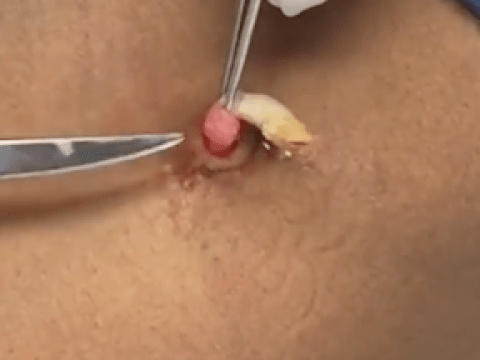 Probably the worst cyst-popping video you will ever see