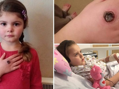 Girl, 5, left with oozing wound after venomous spider bite
