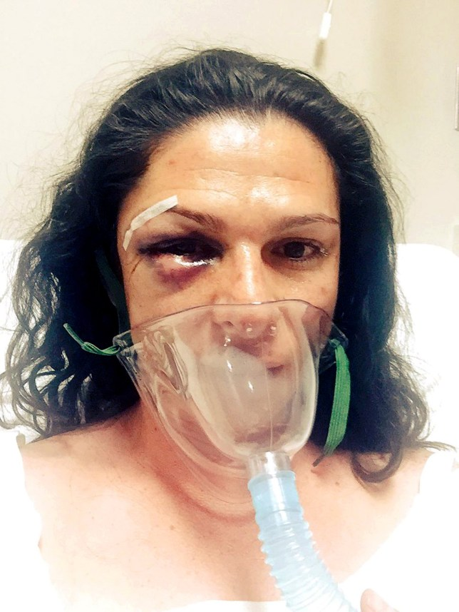"""Pic shows: Ana Gabriela Guevara after she was attacked. The Mexican senator has been hospitalised after she was beaten up by four men after a car crash. Ana Gabriela Guevara, 39, was involved in an accident which involved her motorbike and a car which had four males travelling inside. The incident happened in Mexico-Toluca, Valle del Bravo city, which is around 150km from Mexico City. It is reported Ana was riding her Harley Davison motorbike when a Dodge Voyager vehicle hit her and made her fall to the ground. The senator got up and faced the driver when an argument ensued. Three other men joined the driver outside the vehicle then proceeded to attack her in a gruesome assault, punching her in the chest and the head. Speaking of the attack, she said: """"When I asked them to stop the car in order to call the insurance company as I thought it was an accident, four men got out of the car and started beating me violently, insulting me for being a woman and for riding a motorbike."""" She said the attack went on for a number of minutes before they ran back into the car and raced away. Ana, who was riding with her friend, Karina Rincon, who was on another bike, got back on and rode until they came across a group of policemen. She stopped and reported the attack to the officers who then called an ambulance and she was taken to hospital in Santa Fe, Mexico City. There she underwent surgery to her jaw, with a steel bracket and screws used to fix her injuries. She added: """"I have watched the terrible state of violence women have suffered and I hope authorities find those responsible. They hurt me very much and it was all because I am a woman."""" Ana, a former Olympian competing in the 400m track event, posted pictures online showing her injuries including stitches, a swollen eye and an oxygen mask, calling the aggressors """"vile cowards"""". Prosecutors have confirmed they are investigating the incident. (ends)"""