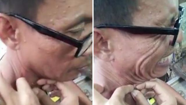 Man finally gets blackhead removed after 20 years (and yes, there's a disgusting video)