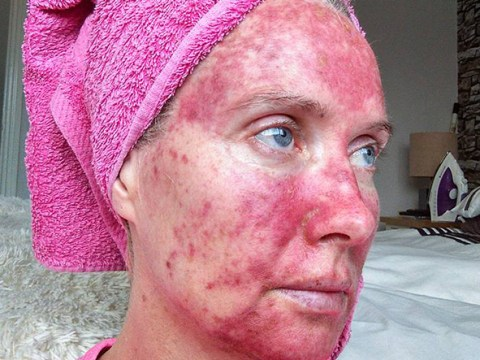Mother's pictures will make you never want to go on a sunbed again