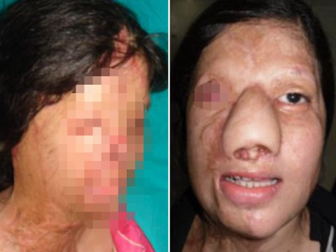 Jealous friend burnt woman's face off to stop her becoming an air hostess