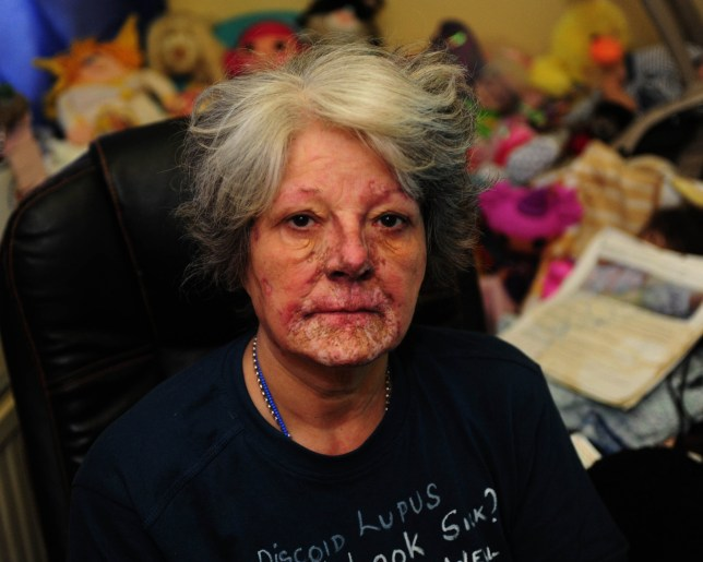 """CeaJay Clem who suffers from an incurable flesh-eating disease. See SWNS story SWLUPUS; A woman from Bristol who has been house-bound since being diagnosed with an incurable flesh-eating disease in 2002 claims her disability benefit has been cut - because assessors have deemed her fit to work. CeaJay Clem, from Longwell Green, claims her Employment and Support Allowance (ESA) was cut this month following an assessment at Flowers Hill Medical Centre on January 19. The 59-year-old says she has received the benefit since suffering a breakdown in 1997 and was """"signed on for life"""" after being diagnosed with Discoid Lupus Erythematosus - a form of skin rash made worse by exposure to sunlight - in 2002. The condition, which she described as """"devastating"""", means CeaJay cannot go outside for more than 15 minutes at a time without her skin burning - even when wearing protective clothing and factor 50 sun cream."""