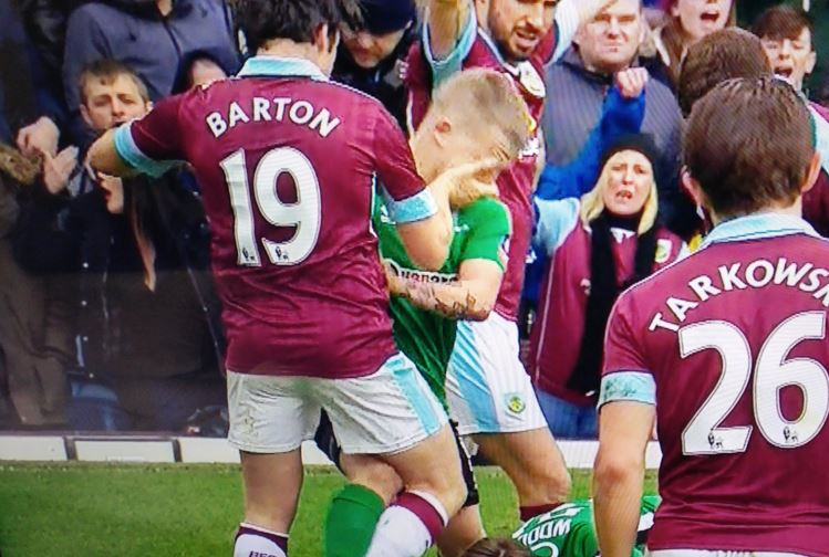 Joey Barton may be hit with disciplinary action after scratching non-league player's face in 'nasty' incident